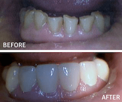 Dental Implants 2