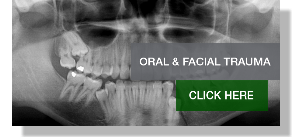 VOMS_ORAL.FACIAL.TRAUMA